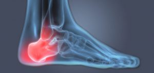 Heel-Pain-X-Ray-Featured-Image-720x340