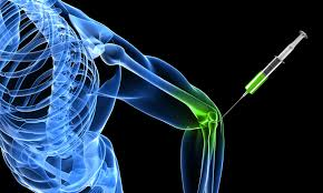 Prolotherapy and Relief from Joint Pain